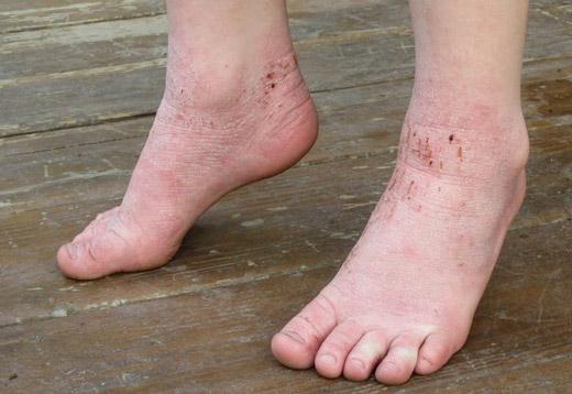 дисгидротическая экзема на ноге