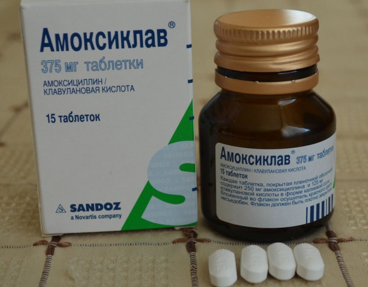 Симптомы аденоидов у детей, схема лечения с применением антибиотиков и профилактика воспаления