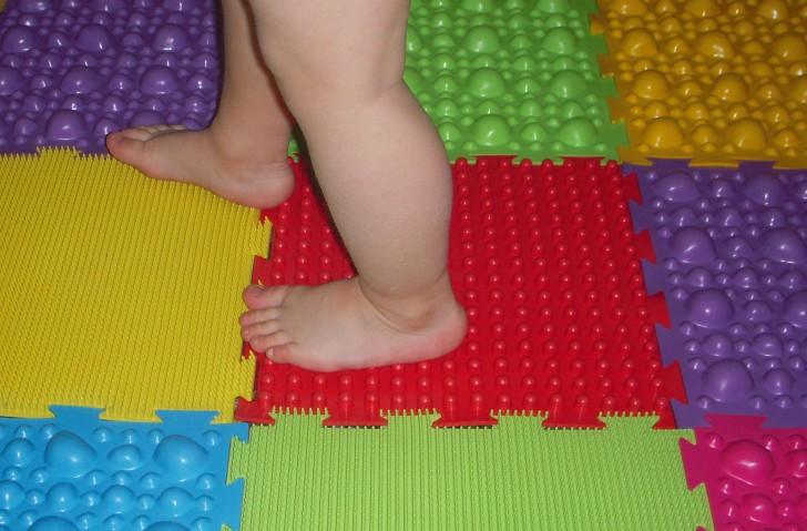 Лечение вальгусной (плосковальгусной) стопы у ребенка методы устранения деформации конечностей