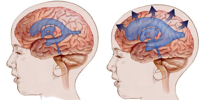 Симптомы гидроцефалии головного мозга у новорожденных и детей до года, последствия и лечение водянки