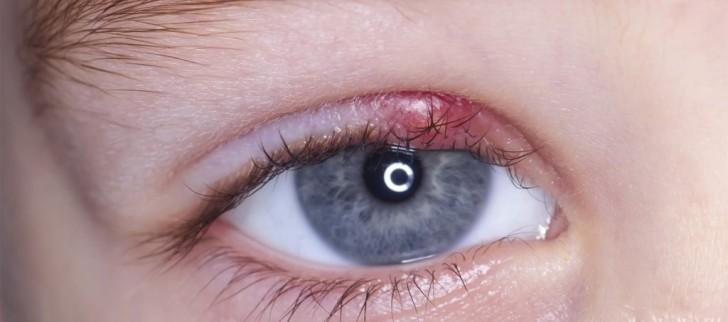 Что делать, если у ребенка опух и покраснел глаз: причины и симптомы отека