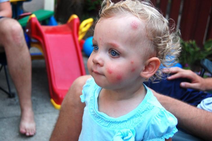 После укусов комаров у ребенка появились большие шишки что делать и какие методы лечения будут эффективными?