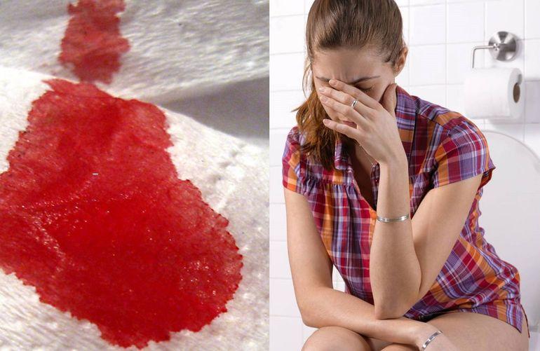 Алая кровь, жидкие или светлые выделения при месячных, другие отклонения от нормы по цвету и консистенции