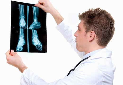 плоскостопие на рентгене