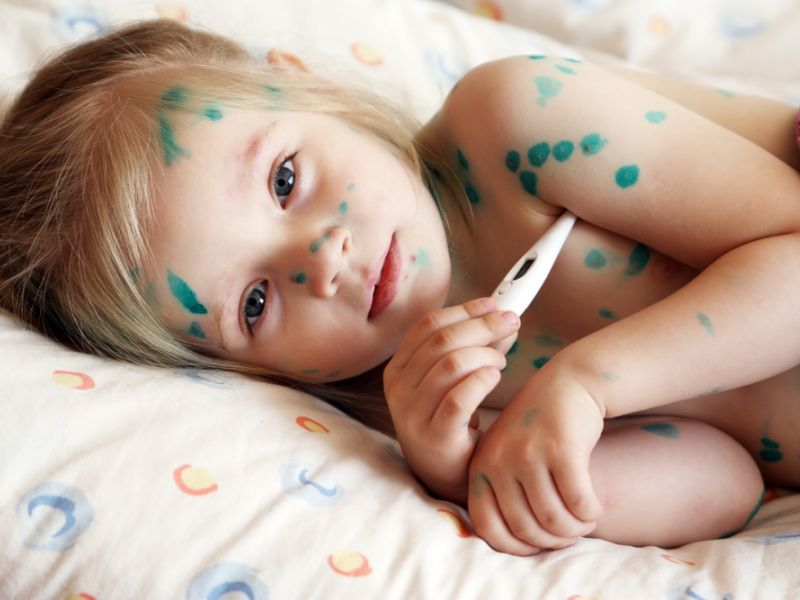 Сколько дней длится инкубационный период ветрянки у детей, когда можно заразиться: симптомы, лечение и карантин