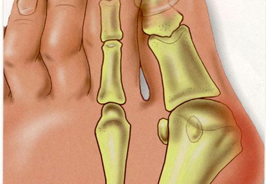 Воспаление косточки
