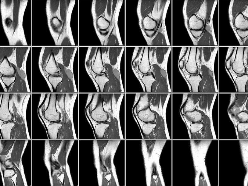 МРТ колена - лучший диагностический метод