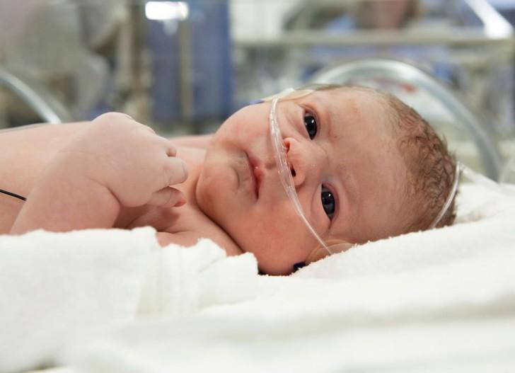 Что такое асфиксия новорожденного: последствия для ребенка, лечение и профилактика