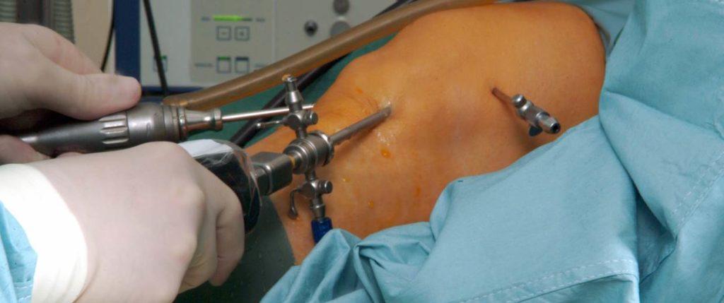 Один из видов операции на колено