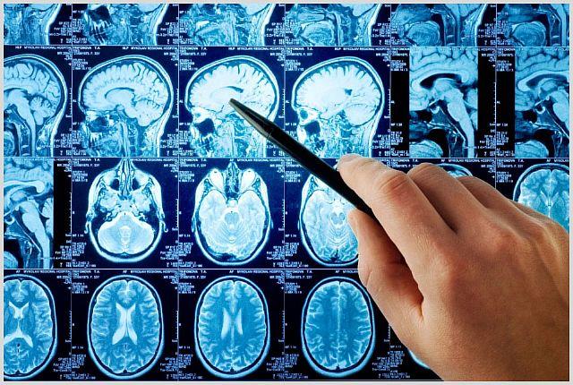 Менингиома головного мозга - что это такое