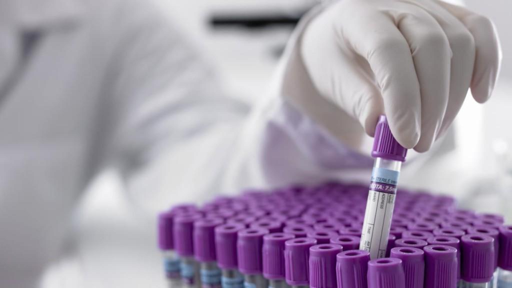Показания к назначению гемостазиограммы при беременности, расшифровка результатов этого анализа, нормы показателей