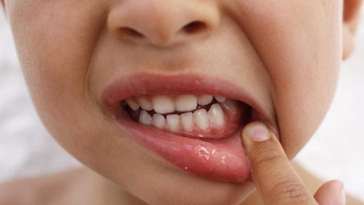 Что делать с флюсом на десне молочного зуба: причины и лечение у детей разного возраста