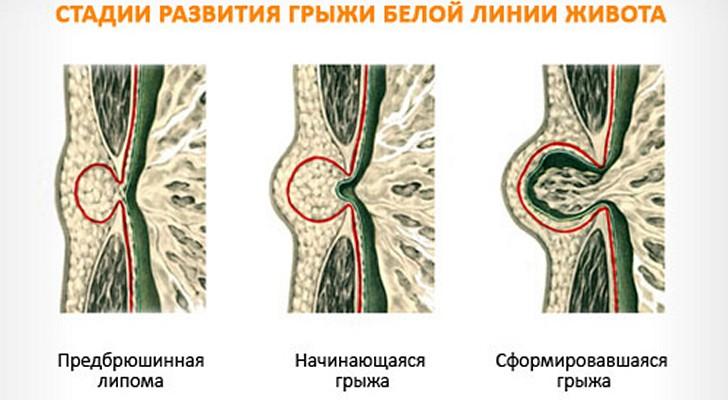 Stadii-razvitija-jepigastralnoj-gryzhi_cr