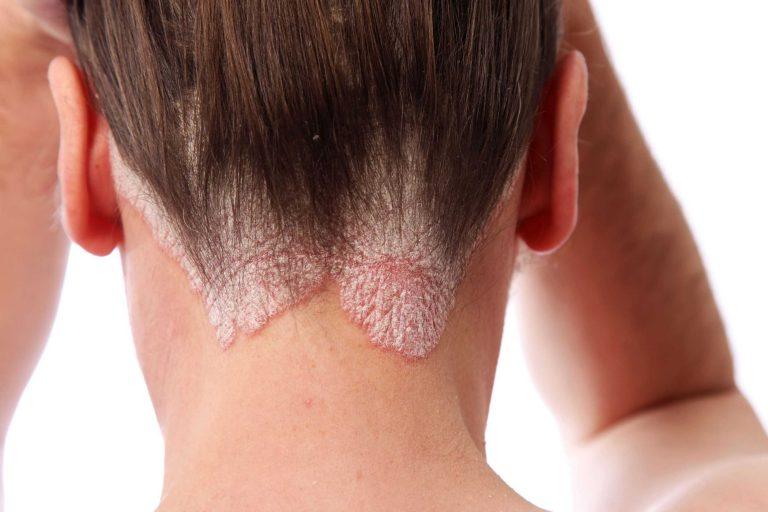 Причины псориаза у детей, фото начальной стадии заболевания и способы лечения