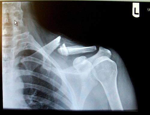 рентген ключицы у ребенка