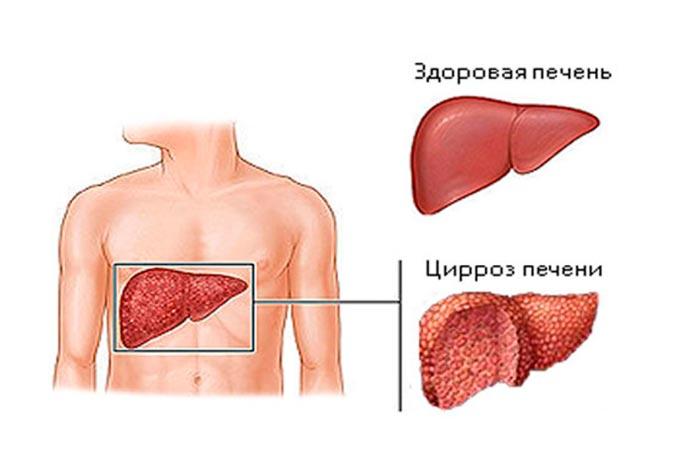 нормальная печень и цирроз