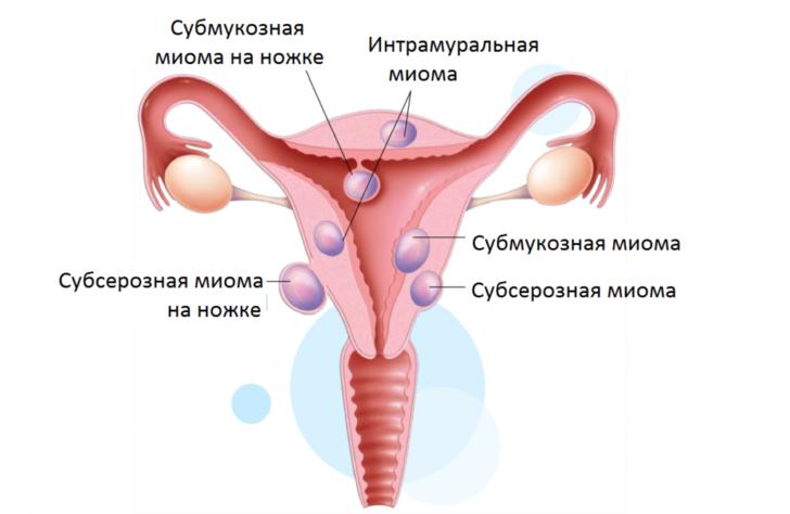 Можно ли забеременеть и родить при миоме матки, каковы особенности течения беременности и родов при такой проблеме?
