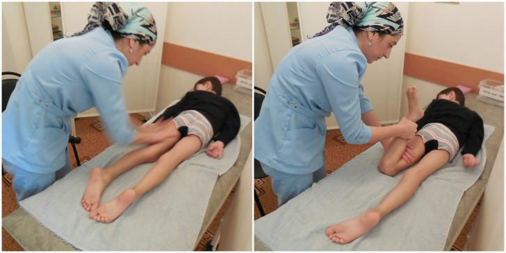 Симптомы остеомиелита у новорожденных и детей старшего возраста, лечение патологии