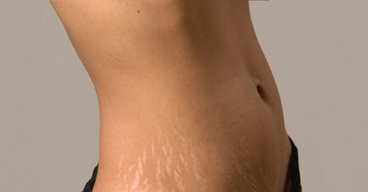 Как в домашних условиях убрать обвисшие после родов живот и бока, какие методы помогут быстро подтянуть кожу?