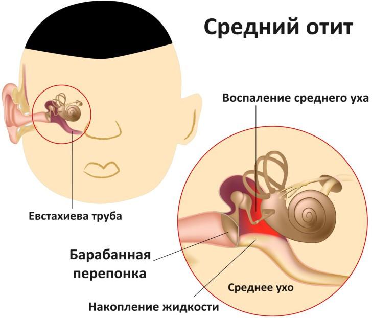 ostryy-sredniy-otit