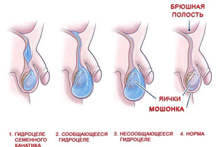 vodyanka_yaichka_u_rebenka_593_262_cr