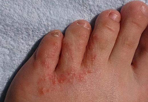 Сыпь на ноге
