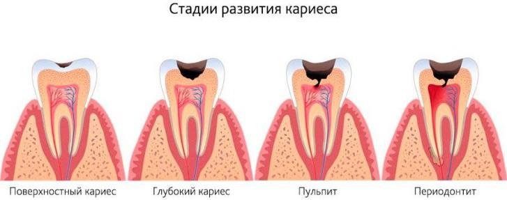 Лечение и профилактика кариеса молочных и постоянных зубов у детей в раннем возрасте