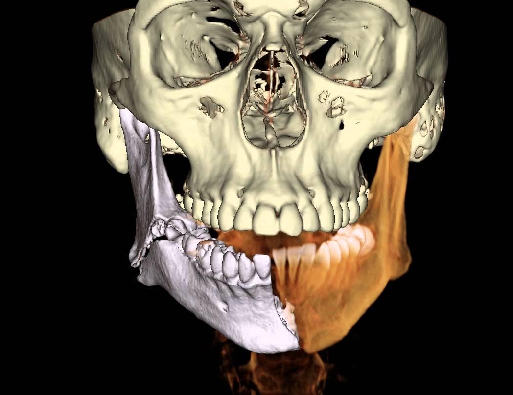 классификация переломов челюсти
