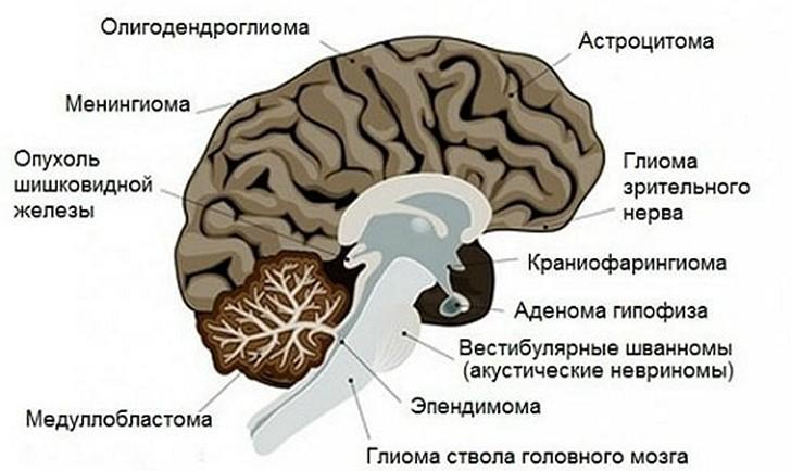 Первичные опухоли головного мозга
