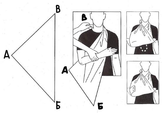 Как сделать повязку своими руками