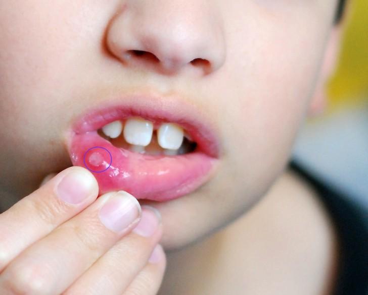 Этиология стоматита у детей чаще всего имеет вирусный характер