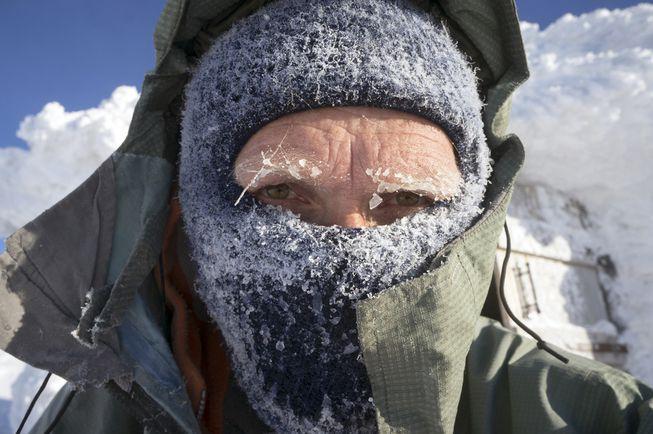 причины обморожения