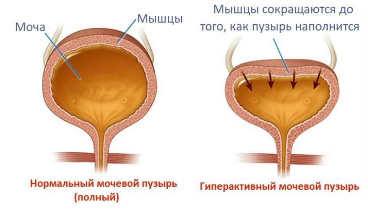 Причины и симптомы нейрогенного мочевого пузыря у детей, лечение дисфункции
