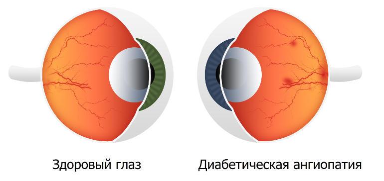 Что такое ангиопатия сетчатки глаз у ребенка, как лечится заболевание?