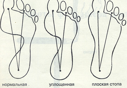 деформация ступни
