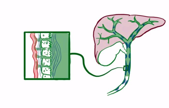 склерозирующий холангит