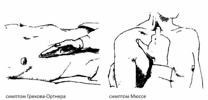 симптом грекова-орнера и мюсси