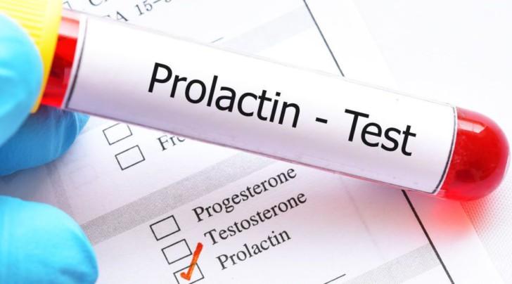 На какой день цикла следует сдавать кровь на гормон пролактин, как подготовиться к анализу, каковы нормы показателя?