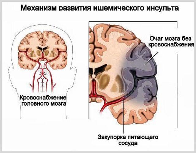 Какой инсульт опаснее ишемический или геморрагический
