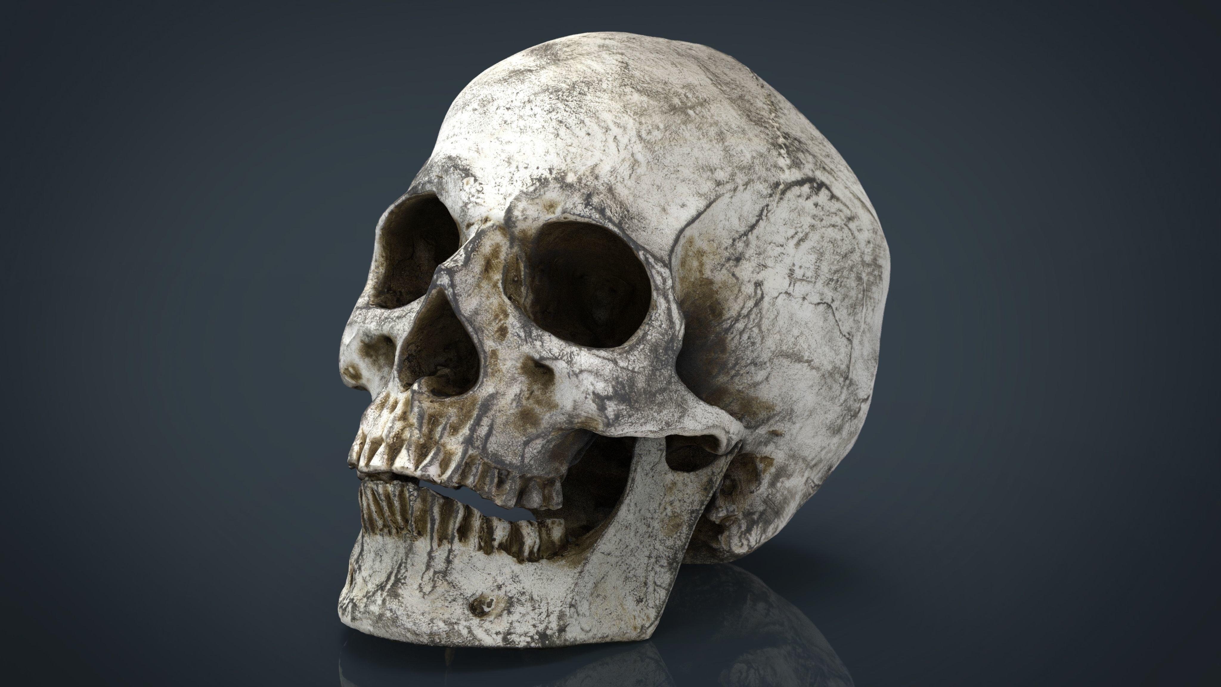 Перелом основания черепа: симптомы, выживаемость, последствия