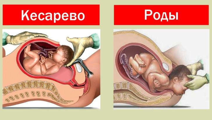 Биомеханизм родов в случае лицевого предлежания плода, последствия для ребенка
