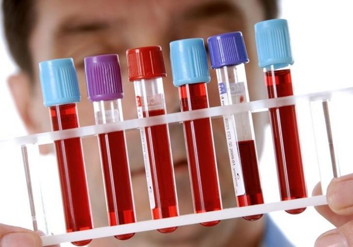 Соотношение гормонов ФСГ и ЛГ у женщин в норме, причины отклонений показателей