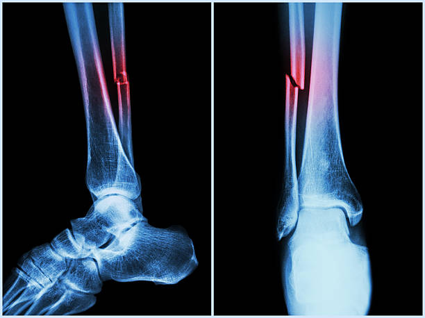 Рентген является неотъемлемой частью диагностики перелома
