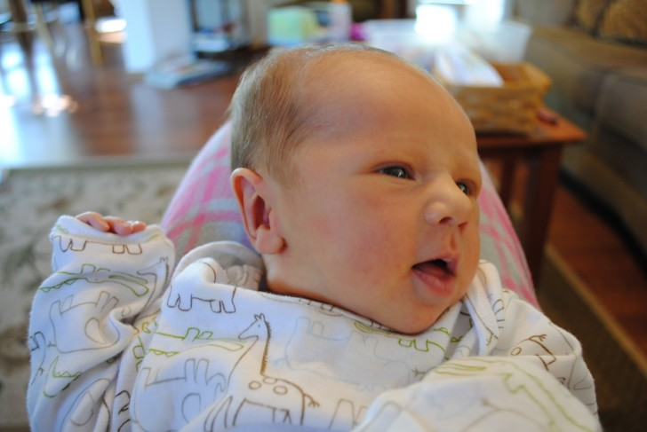 Причины возникновения гематомы у новорожденного на голове после родов, особенности лечения и последствия