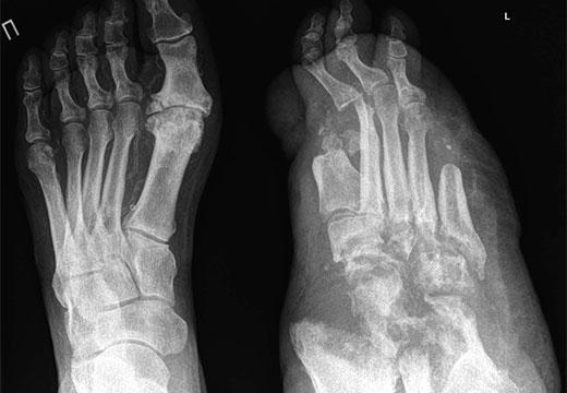 Рентген стопы шарко