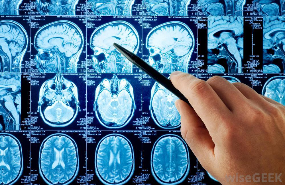 последствия при переломе черепа