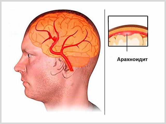 Арахноидит мозга - что это такое