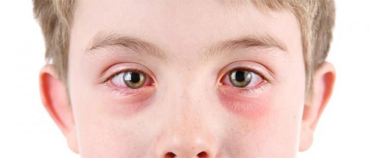 Что делать, если маленькому ребенку в глаза попал песок, как правильно их промыть?