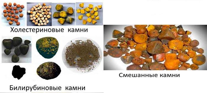 билирубиновые, холестириновые и смешанные камни