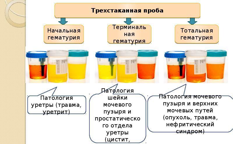 Причины появления следов и сгустков крови в моче у новорожденного и ребенка старше года